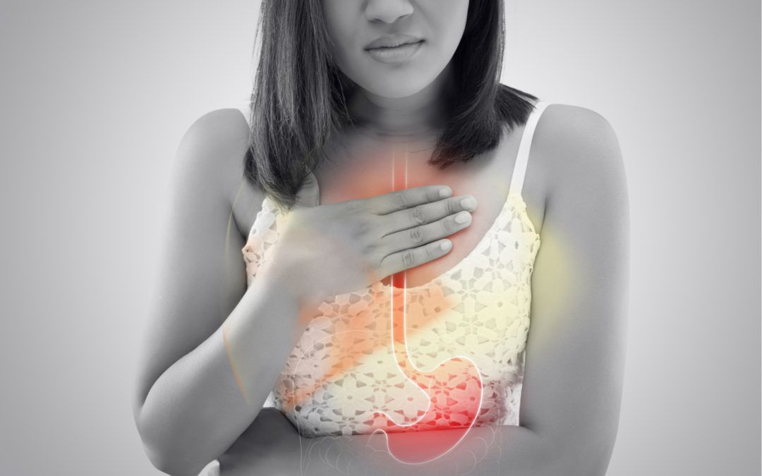 How to Tell if You Have Heartburn, Acid Reflux or GERD